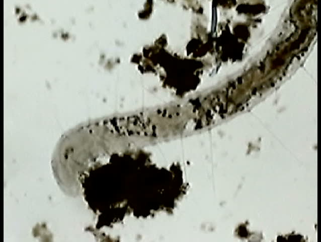 An  Oligochaete worm feeding.  The organism can be seen actually feeding and swallowing the surrounding detritis.  Note characteristic bristles (setae) extending outward.   Magnification 40X - SD stock video clip