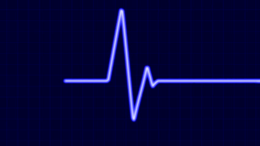 Cardiogram. Six seconds loop. - HD stock footage clip