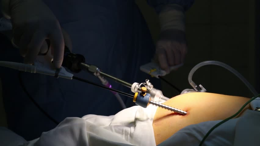 Hands in gloves conduct endoscopic surgery in abdominal organ