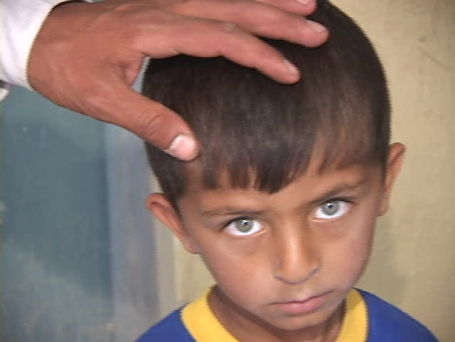 IRAQ - CIRCA 2003: A young Iraqi boy shows the effects of war in his sad face circa 2003 in Iraq.
