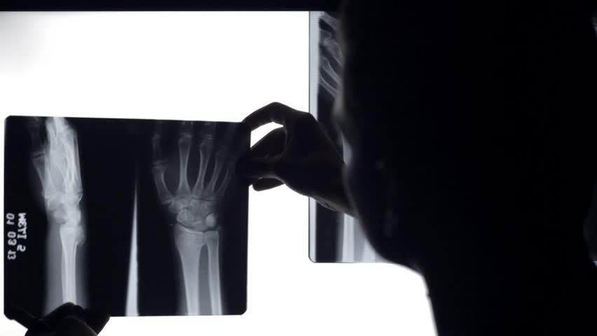 Doctor analyse x rays broken bones. Doctor looking at x-rays of broken wrist in illuminated panel. - HD stock video clip