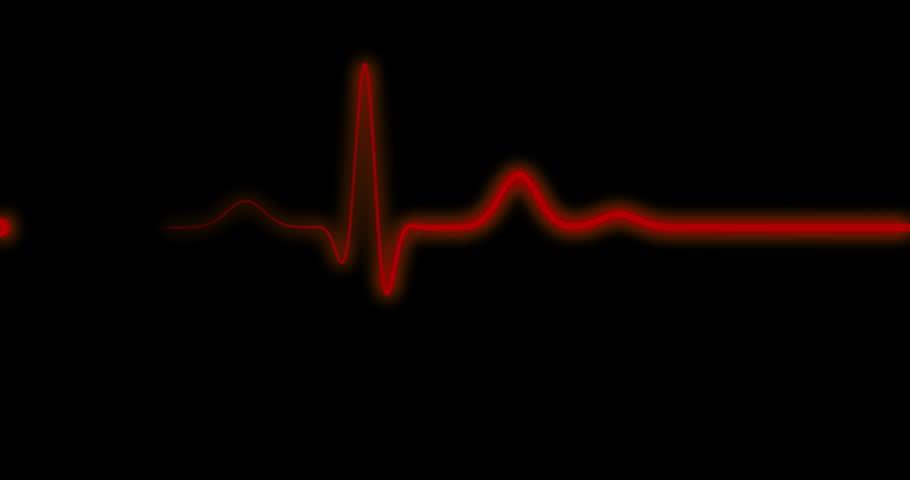 heartbeat sound machine