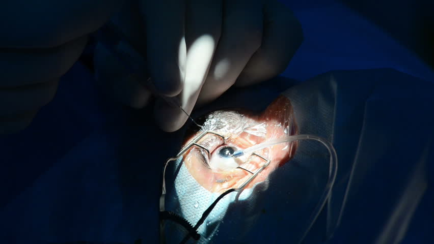 Ophthalmic Clinic, surgery | Shutterstock HD Video #21799912