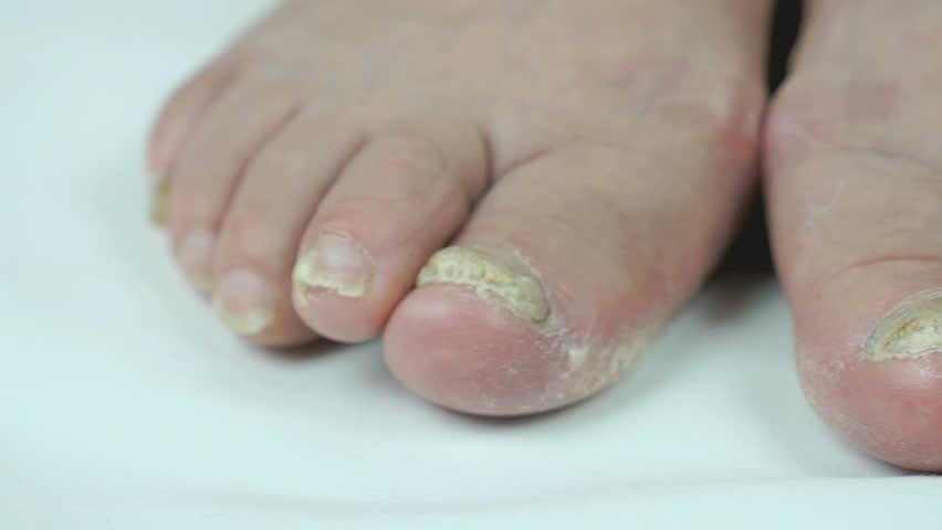 how to kill fungus under toenail