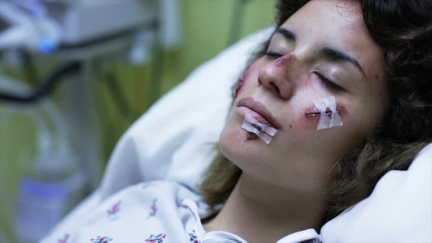 Female patient in recovery room in hospital after accident - HD stock footage clip