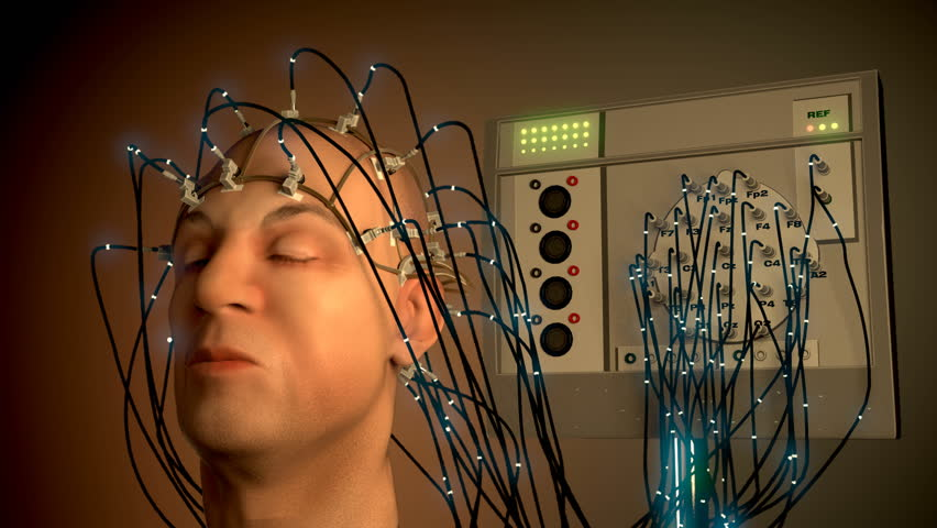 Record Of The Electricity In The Brain Is An Electroencephalogram