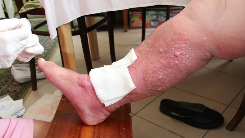 Wound - venous ulcer, stasis ulcers, varicose ulcers, ulcus cruris. 6 Nurse imposes gauze bandage. http://en.wikipedia.org/wiki/Venous_ulcer