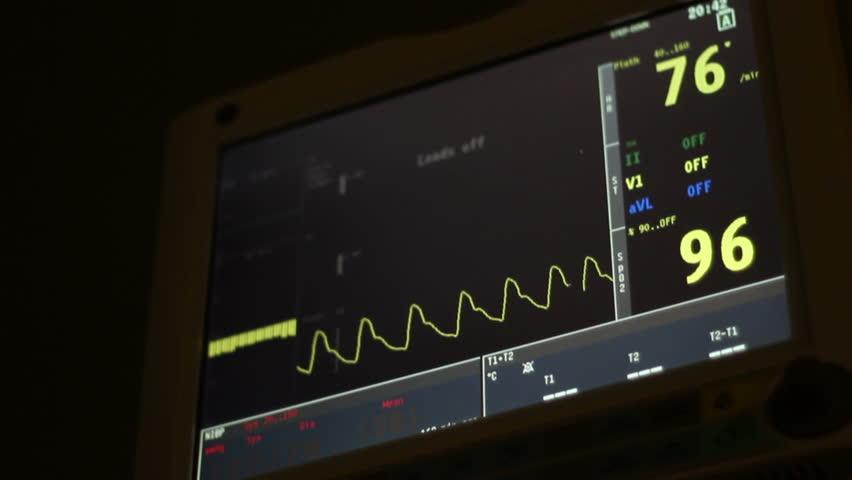 Hospital Bedside Monitor Medical Bedside Monitor at