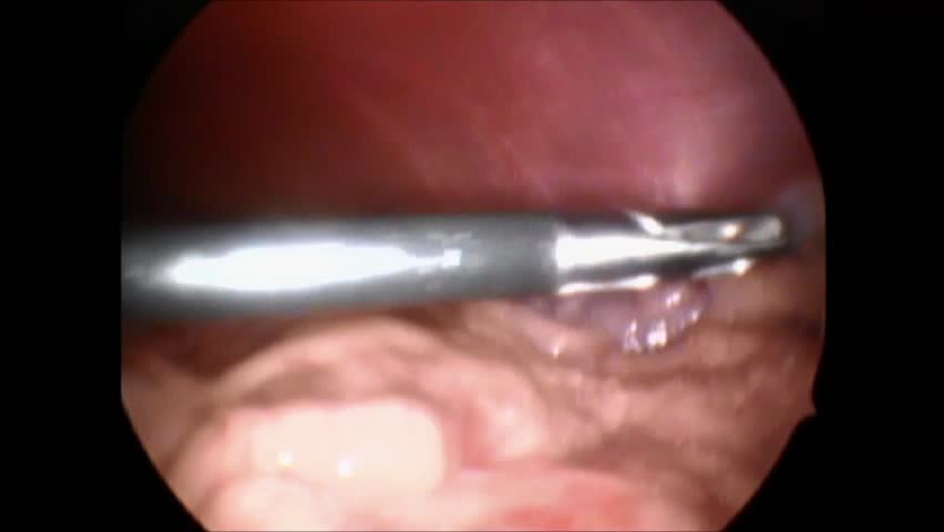 Laparoscopic camera footage of a surgical procedure.