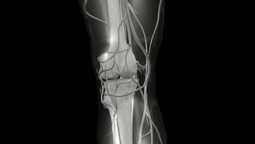 HD Knee X-ray