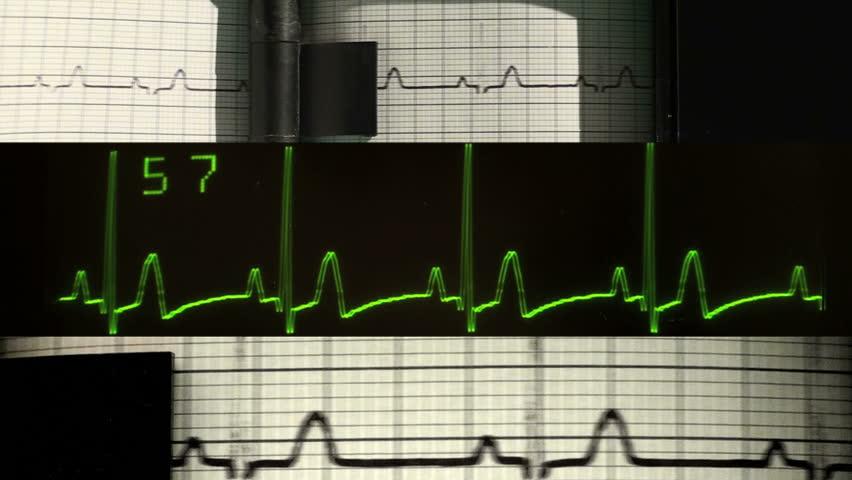 EKG montage - HD - HD stock video clip